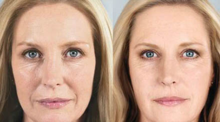 foto prima e dopo acido ialuronico