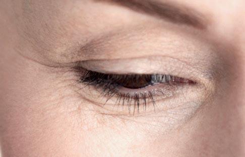 rughe-contorno-occhi